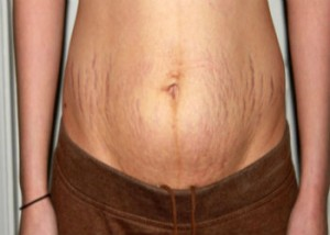 سفت کردن پوست بعد از کاهش وزن