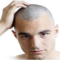 تراشیدن مو برای پر پشت شدن