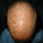 کاشت مو برای چه کسانی مناسب تر است