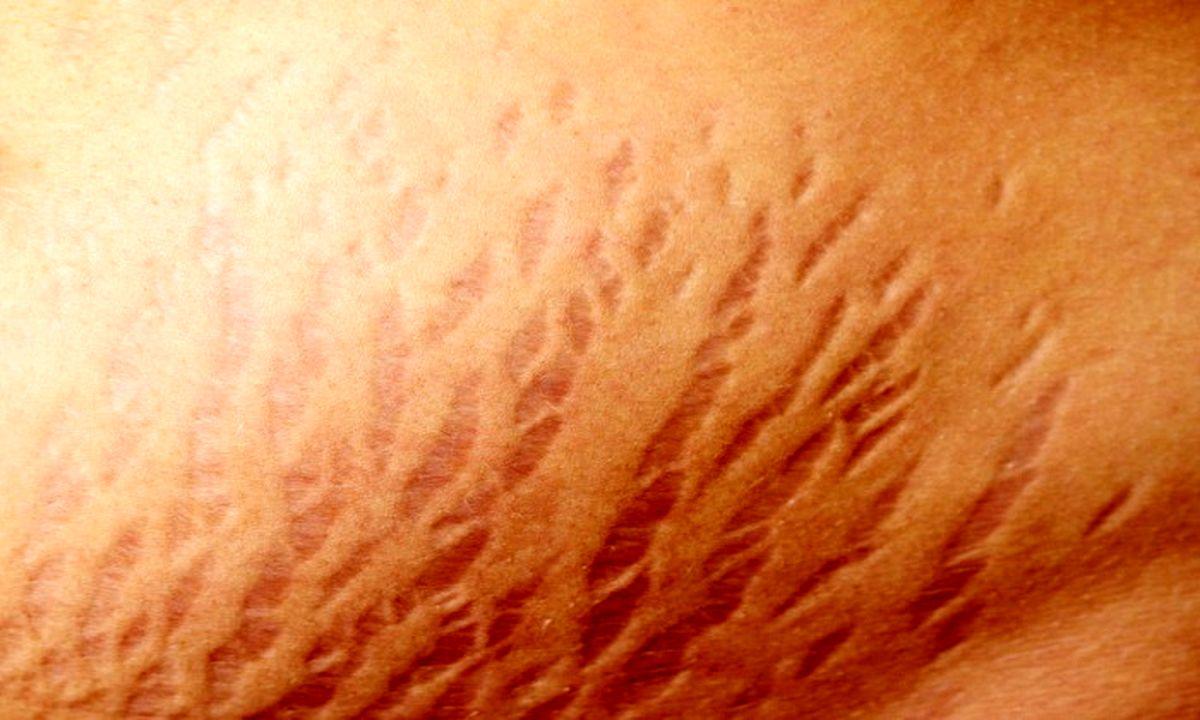 درمان فوری ترک های پوستی پس از لاغری